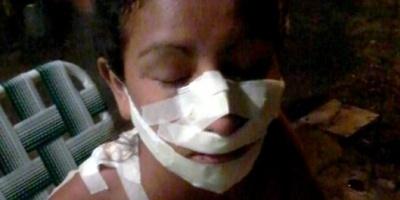 """Desfiguraron a una adolescente """"por ser linda"""" en Formosa"""