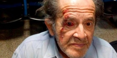 Un guardia de un supermercado golpeó a un jubilado tras una discusión: el hombre quedó en terapia intensiva